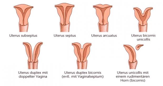 fruchtbaren zervikalen schleim oder sperma