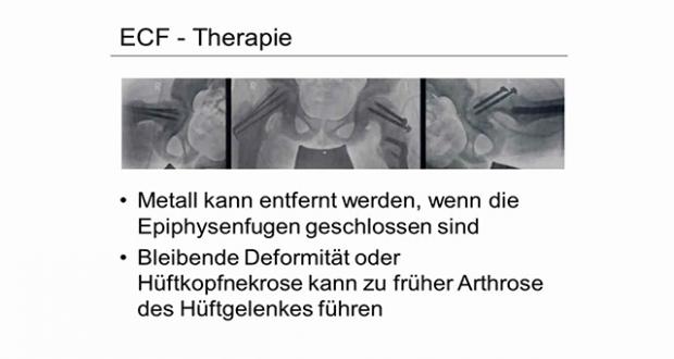 IV  Hüfte / Knie