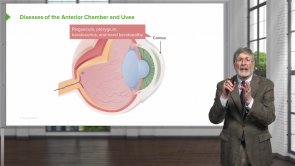 Diseases of the Anterior Chamber and Uvea