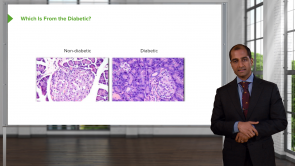 Pancreatic Disease & Diabetes