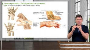 Obere Extremität – Knochen & Gelenke von Oberarm/Unterarm/Hand