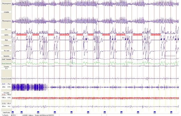Schlafstörungen_Messung_Polysomnographie-apnees-5min2.png