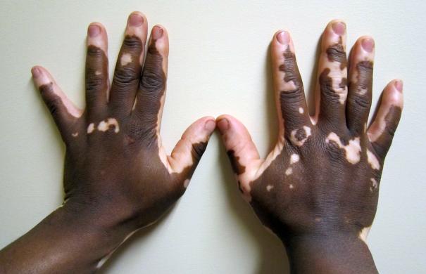 Vitiligo_Haut_4096px-Vitiligo2.JPG