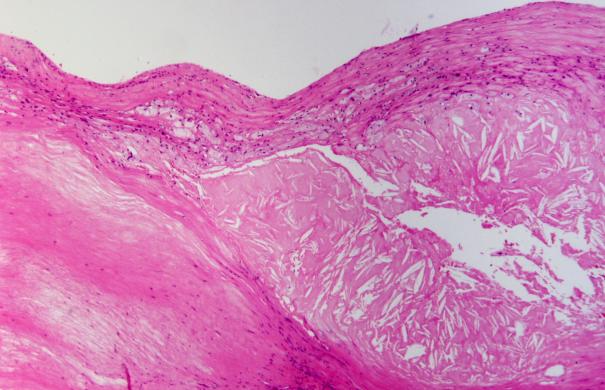 Arteriosklerose_Atherosclerosis,_HE_2.JPG