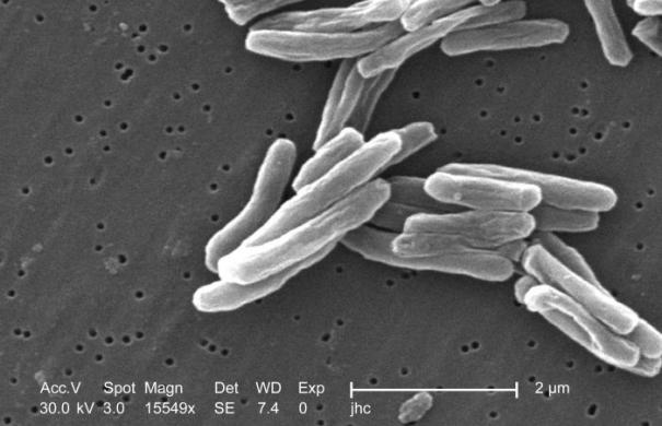 Bakterien_Tuberkulose_Mycobacterium_tuberculosis_8438_lores.jpg