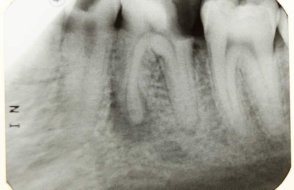 Parodontitis_Zahn_Dental_X-ray_2012_PD_06.JPG