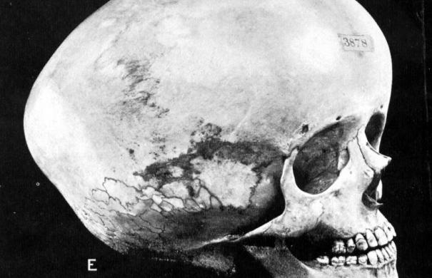 Wasserkopf_Schädel_Hydrocephalic_skull.jpg