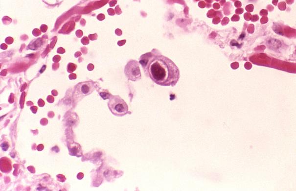 Zytomegalie_Virus_Cytomegalovirus_01.jpg