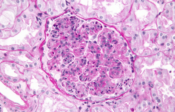 Glomerulonephritis_Post-infectious_glomerulonephritis_-_very_high_mag.jpg