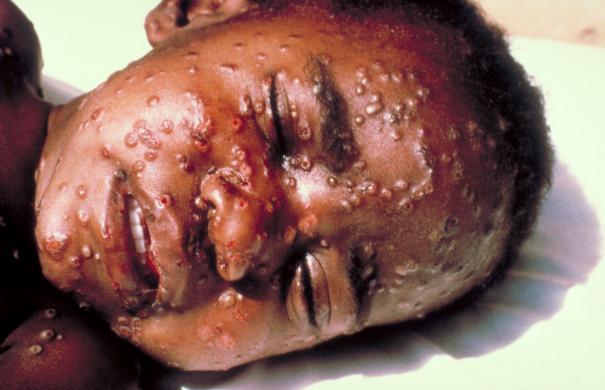 Impfung_Pocken_Smallpox.jpg