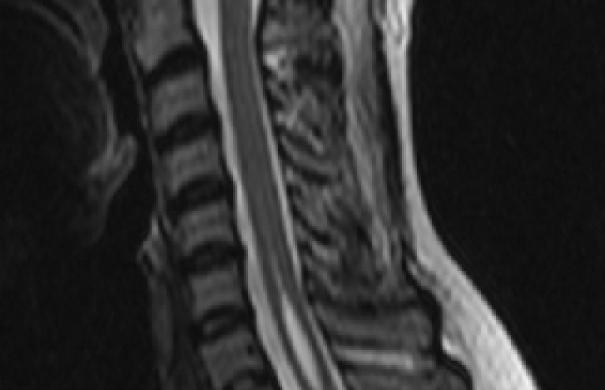 syringomyelie-Höhlenbildung-Rückenmark-Syringomyelia.jpg