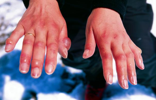 Unterkühlung_Erfrierung_Frostbitten_hands.jpg
