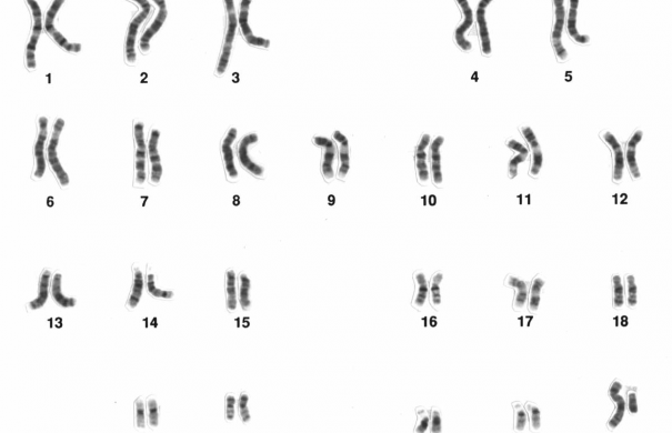 Chromosomenaberration_Human_male_karyotpe_high_resolution.jpg