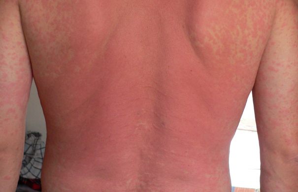 Hautausschlag_Ruecken_fcm.jpg