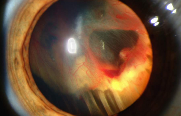 Slit_lamp_photograph_showing_retinal_detachment_in_Von_Hippel-Lindau_disease_EDA08.JPG