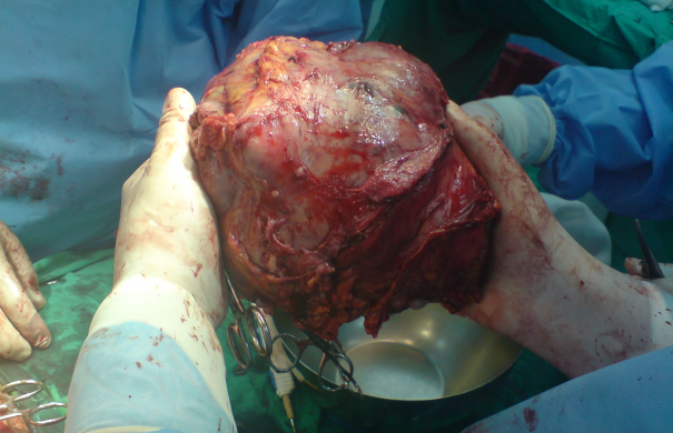 Big_Liver_Tumor.JPG