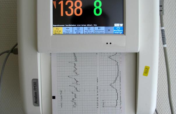 Cardiotocograph.JPG