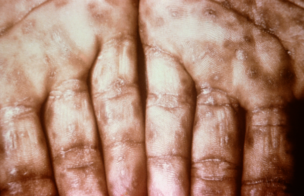 Syphilis_Sekundärstadium_Secondary_Syphilis_on_palms_CDC_6809_lores.rsh.jpg