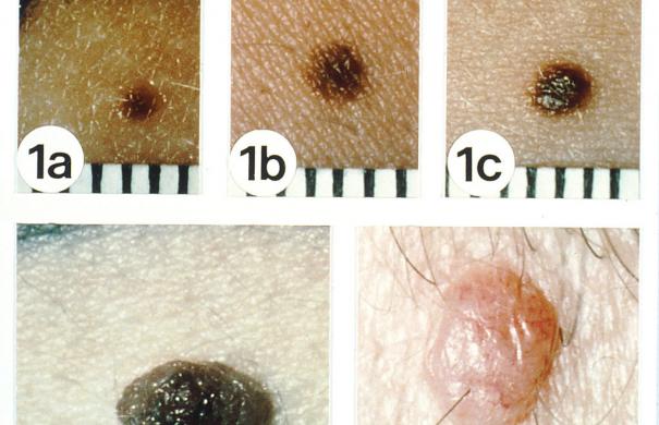 Hautkrebs1_Non-Melanoma_01.jpg