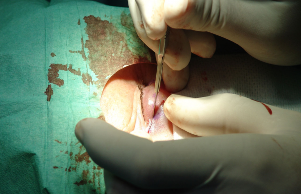 Plastische-Chirurgie_Augenlidkorrektur_Blepharoplasty_04