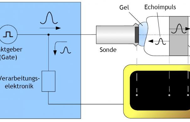 Sonografie_Verfahren_Echo-Impuls-Verfahren