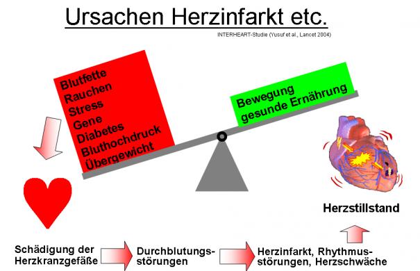 Herzinfarkt1_Ursachen_Herzinfarkt_etc.png