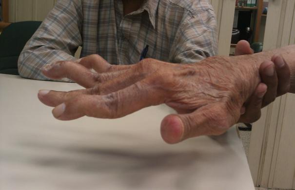 Arthritis_Deformation_Swan_neck_deformity_in_a_65_year_old_Rheumatoid_Arthritis_patient-_2014-05-27_01-49.jpg