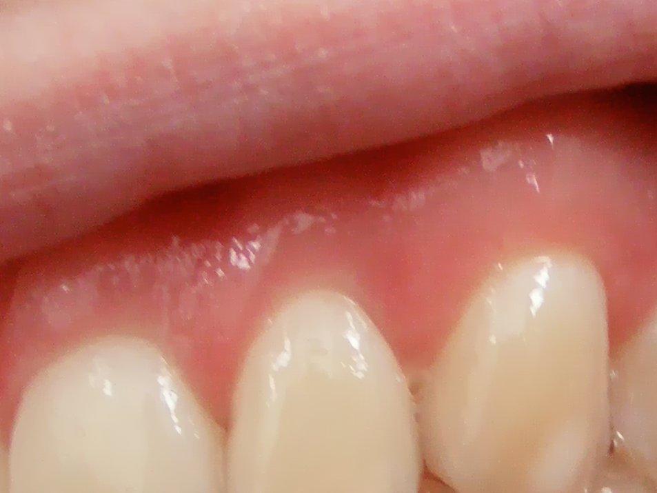 Zahnfleischentzündung_Gingiva.jpg