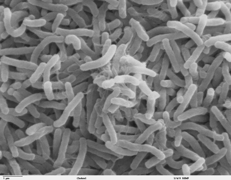 mykoplasmen-bakterien-Cholera_bacteria_SEM.jpg