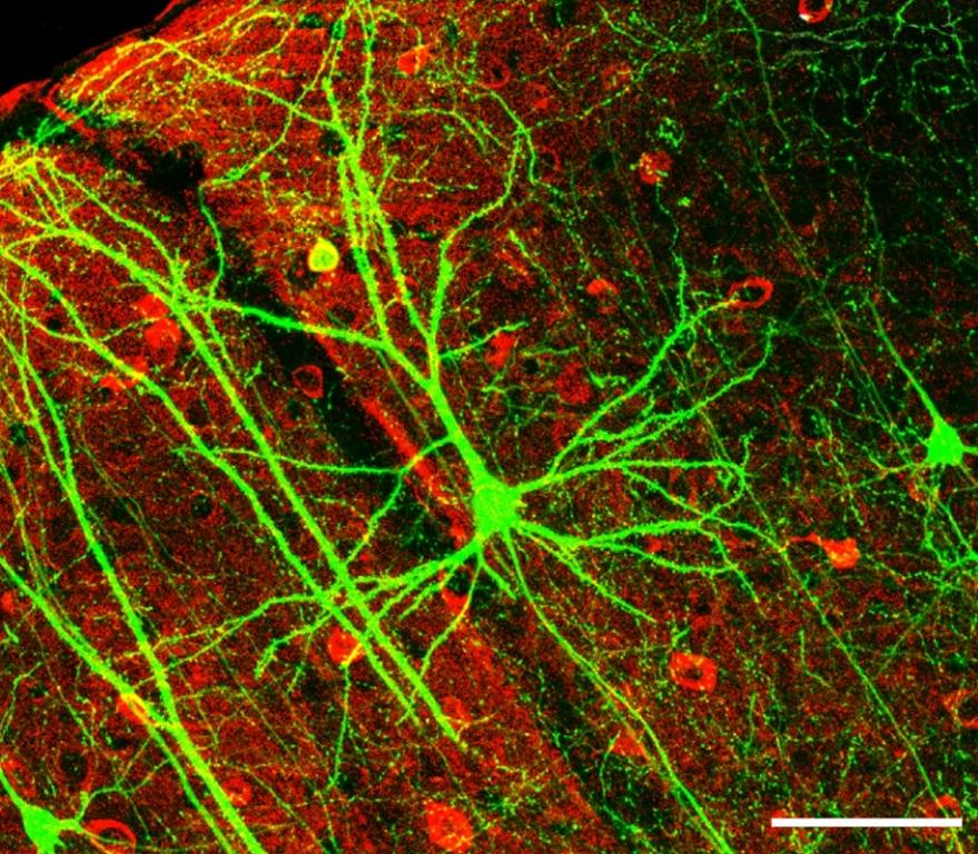 neuralgie-nervenschmerz-PLoSBiol4.e126.Fig6fNeuron.jpg
