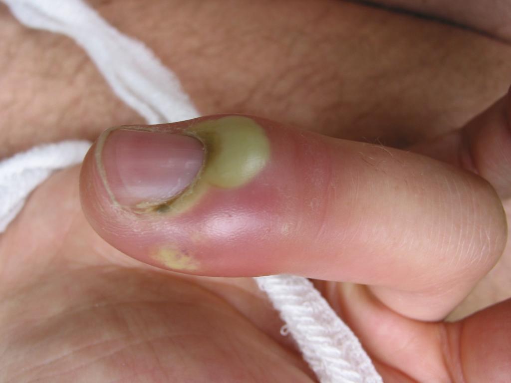 panaritium-finger-Panaritium01