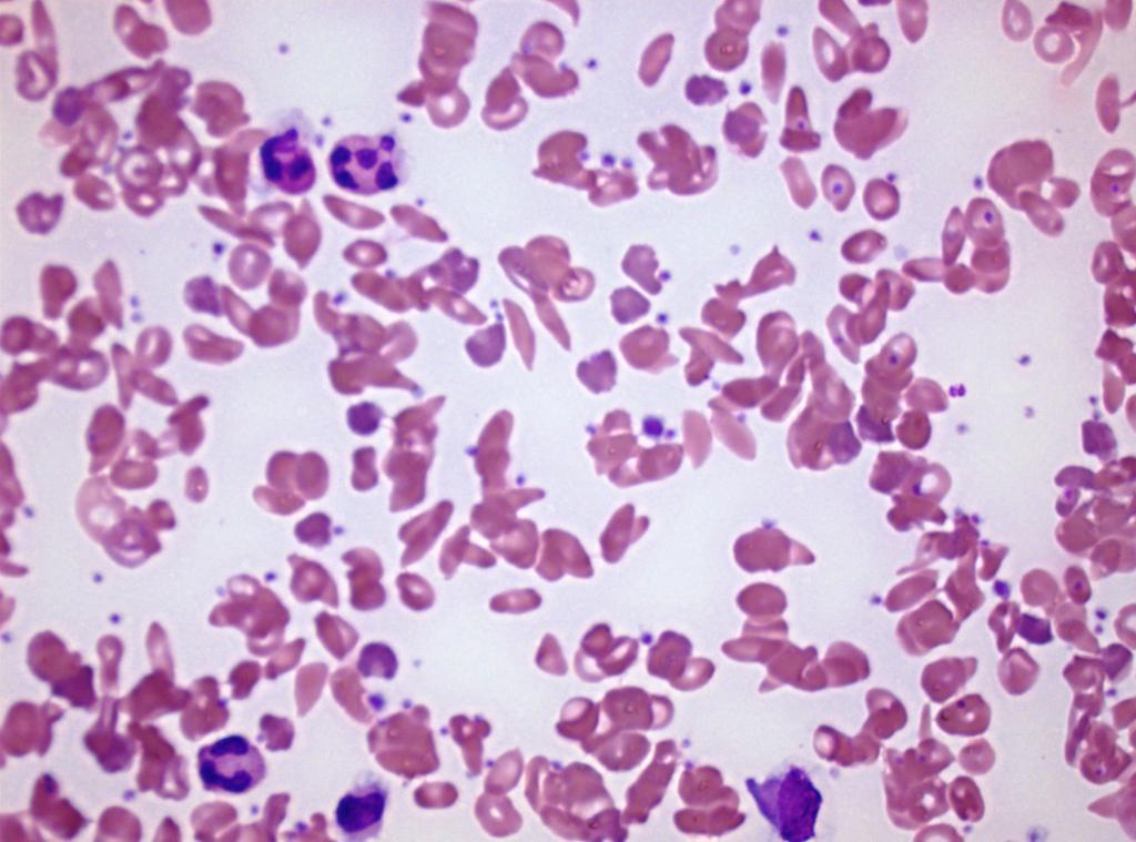 Sichelzellenanämie_Blut_Sikkel2.jpg