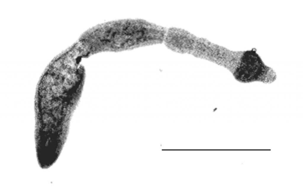 Echinokokkose_Bandwurm_Echinococcus_multilocularis.jpg
