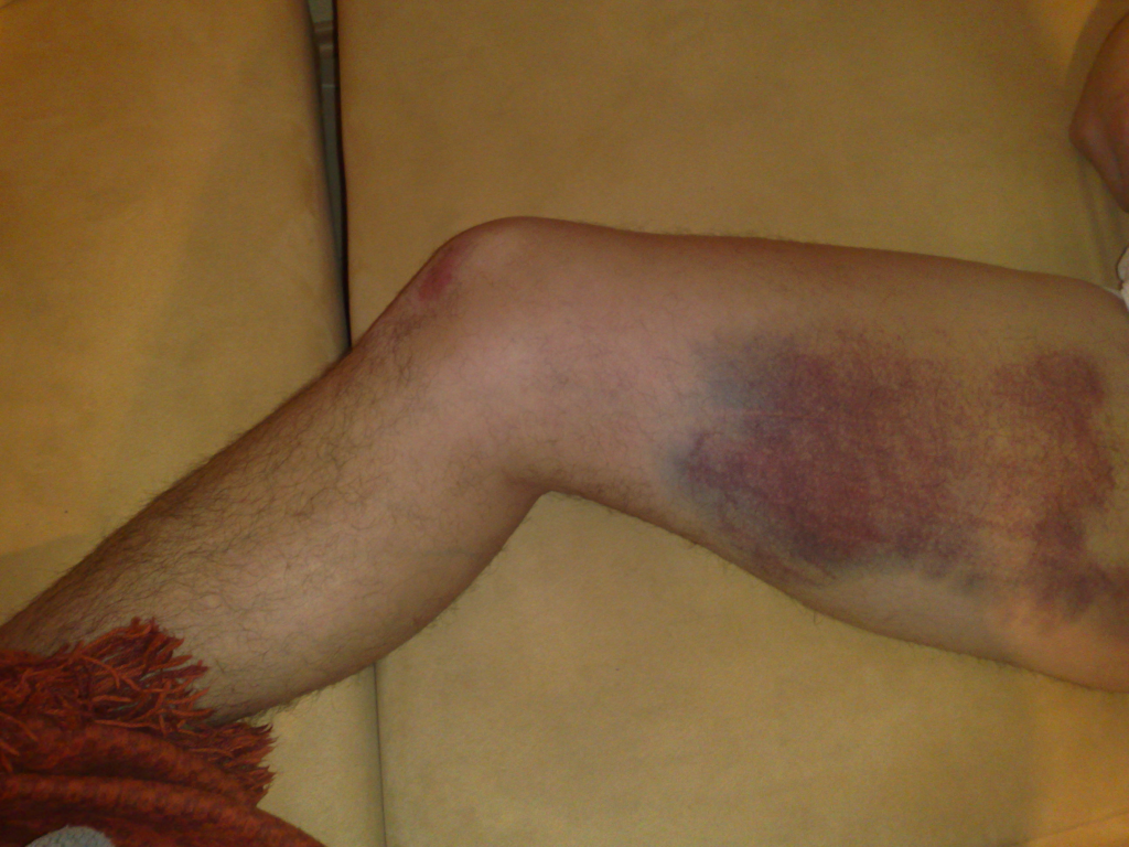 Sportverletzungen_Doppelter_Muskefaserriss_am_Oberschenkel.jpg