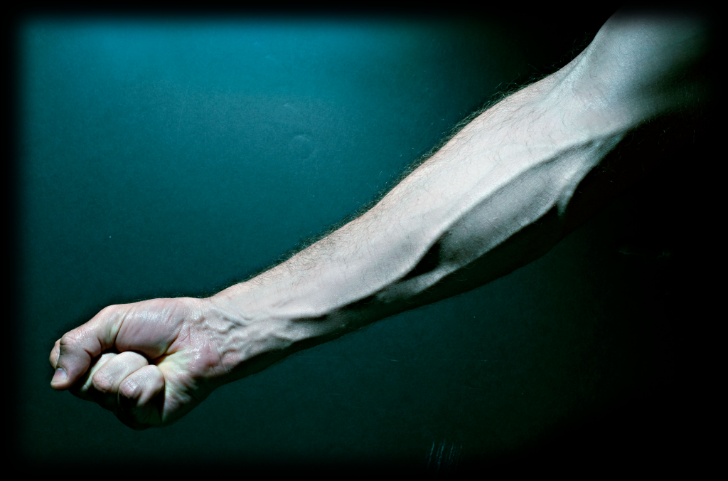 Arm_veins_-_20090522.jpg