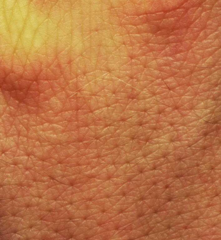 Menschliche_Haut.jpg