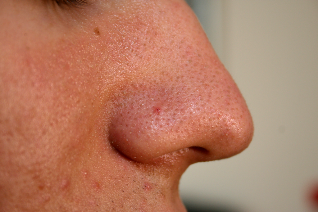 Nose_with_Blackhead_2009.jpg