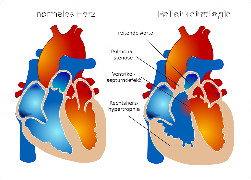 Fallot-Tetralogie_Fallot'sche Tetralogie_2000px-Tetralogy_of_Fallot_de.svg