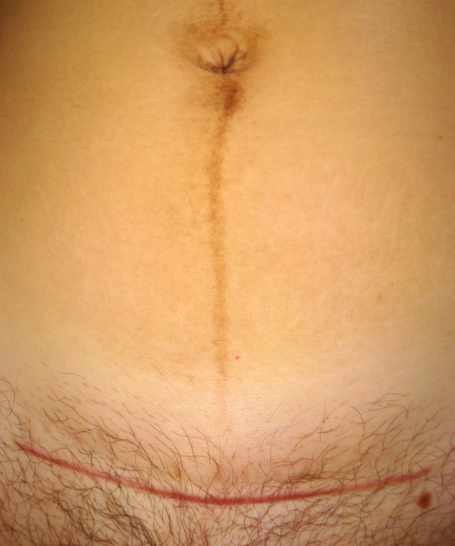 Cesarean_section_scar_and_linea_nigra.JPG