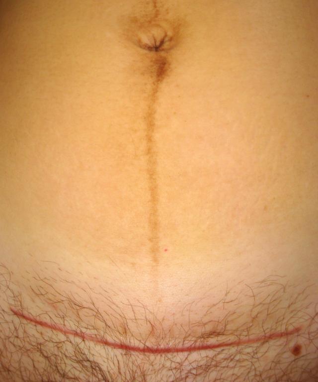 Cesarean_section_scar_and_linea_nigra.JPG