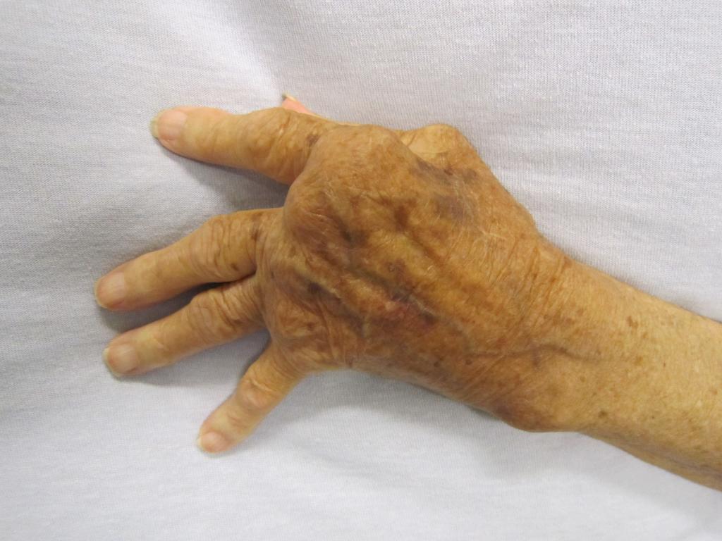 Rheuma_Hand_4096px-Rheumatoid_Arthritis.JPG
