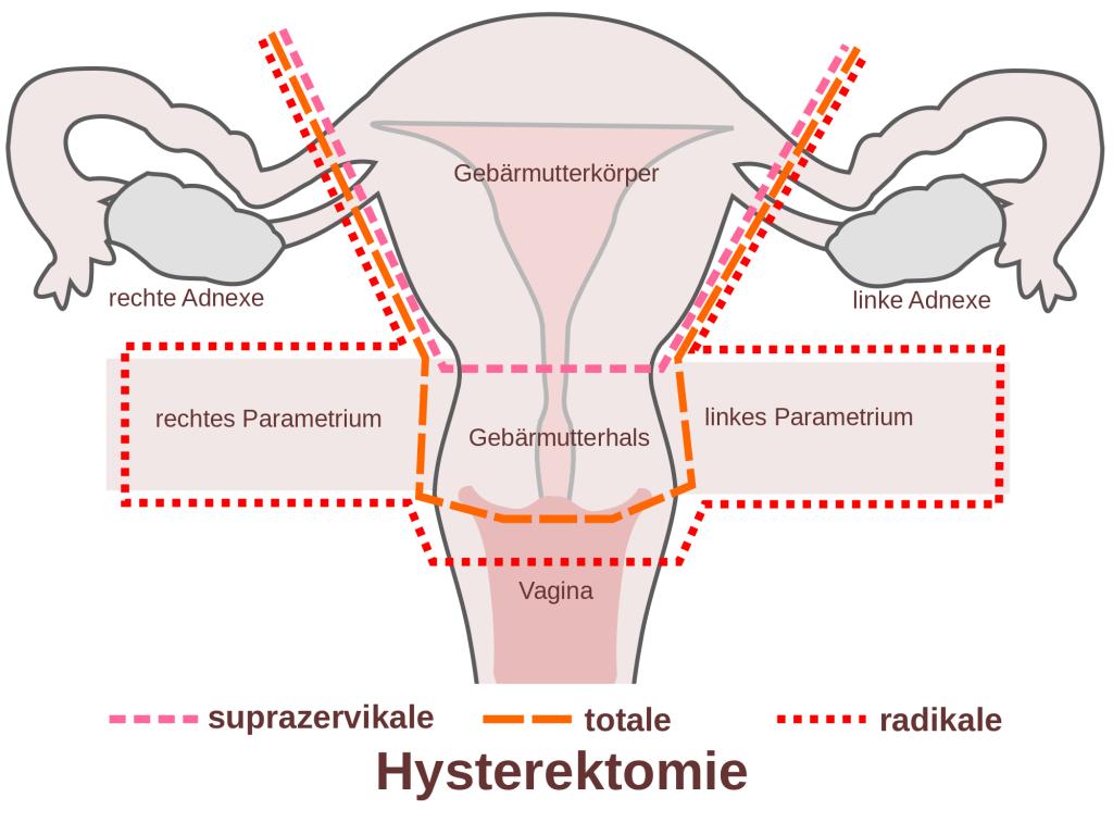 Wechseljahre_Hysterektomie_1024px-Scheme_hysterectomy-de.png