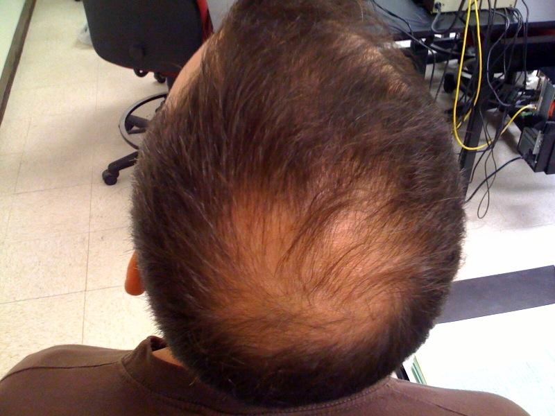 Haarausfall_Mann_Alopecia