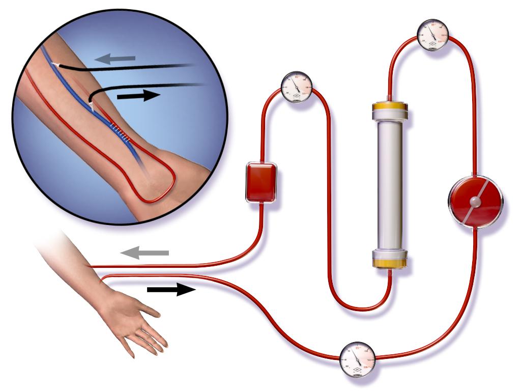 Dialyse_Prozess_Blausen_0313_Dialysis