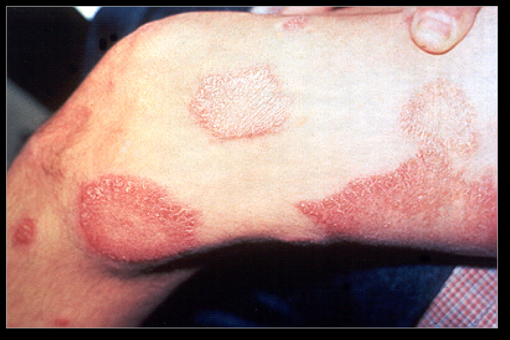 Lepra_Aussatz_Leprosy_thigh_demarcated_cutaneous_lesions