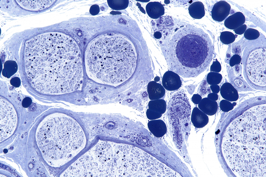 Nervenentzündung_Neuritis_Vasculitic_neuropathy_-_plastics_-_intermed_mag.jpg