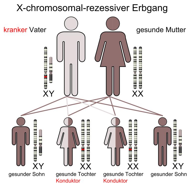Vererbung_chromosomal-rezessiv_X-chromosomal-rezessive-Vater