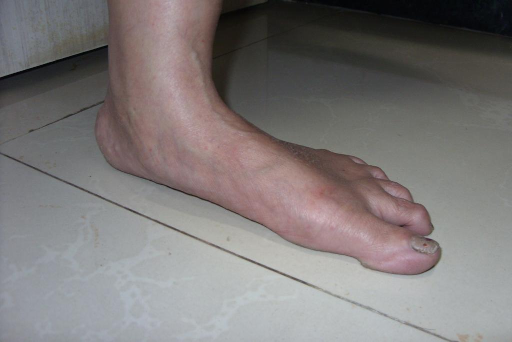 Plattfuß_seitenansicht2_adult flatfoot..jpg