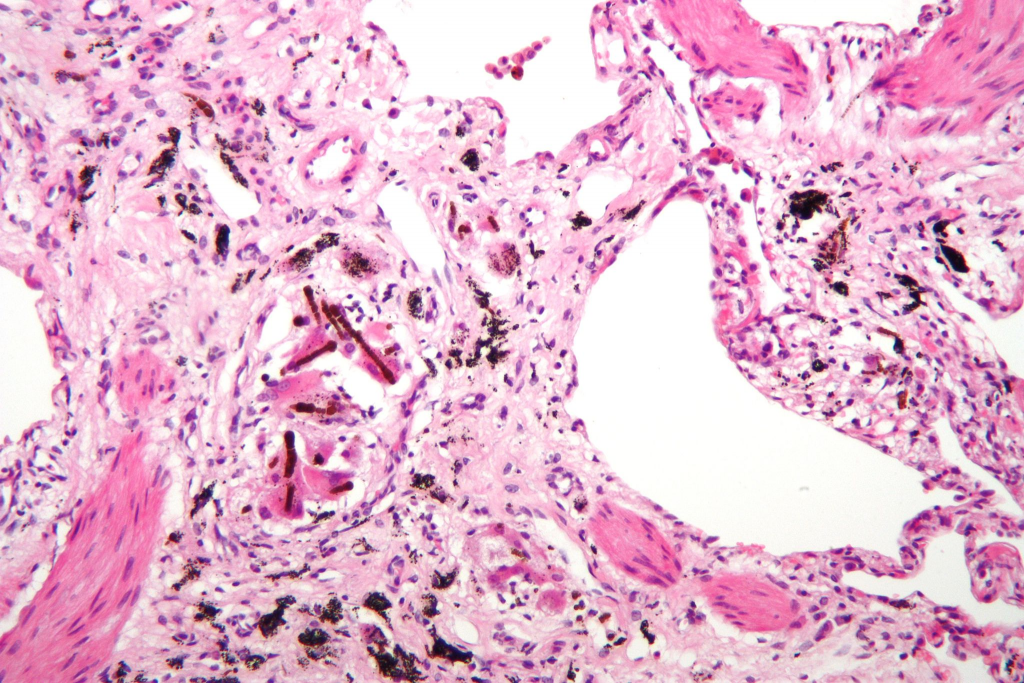 Asbestos_Asbestosis_2048px-asbetosis_high-mag.jpg