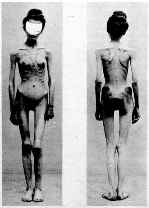 Magersucht1_512px-Anorexia_case_1900.jpg